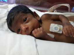 Help Banumathy's Preterm Baby Born At 30 Weeks