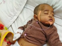 Fund Raising for Heart Surgery for 6 month Baby Boy