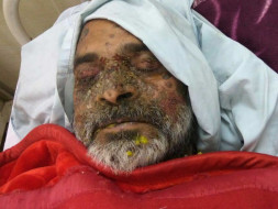 Help Mr Anil Kapil, who is in ICU, fight Sepsis and Bullous Pemphigoid