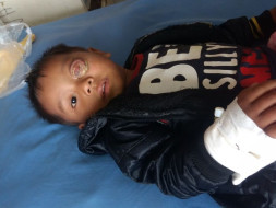 Baby Keffrien's Eye Has Been Ravaged By Cancer, Save His Life