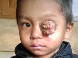 Help Keffrien to fight against Retinoblastoma