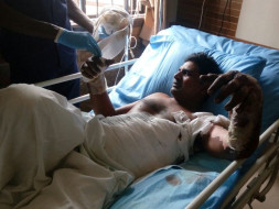 Help Thouhid For Treatment Of Severe Electric Shock