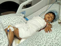 2-Year Old Is In The ICU After Falling Into A Bucket Of Boiling Water