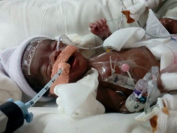 This 1-Month-Old Is Fighting For His Life In The ICU