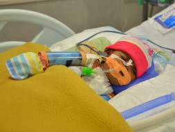 Help This Baby Girl Who Was Born Premature With 3 Holes In Her Heart