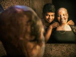 In the name of love for acid attack survivor Rani