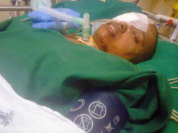 help vigneswari fight tracheostomy