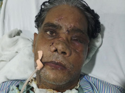 Please Help My father Undergo Eye And Throat Surgery