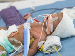 """My 2-week-old Baby Is Fighting To Stay Alive After A Heart Surgery"""