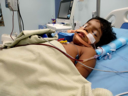5-year-old Nivetha is fighting to stay alive after a Pneumonia attack