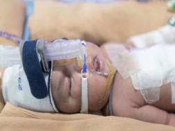 This 6-Day-Old Was Born With Her Intestines On The Outside