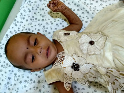 This Baby Has A Rare Birth Defect That Is Killing Her From Inside