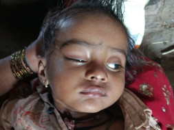 Help Baby Kiran Fight Against Blindness