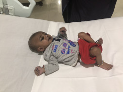 Help 6-Month-Old Daksh Undergo An Urgent Heart Surgery