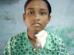Support Sudhamathi to recover from End Stage Renal disease