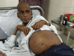 Need Financial Help For My Father's Treatment Of Kidney Failure