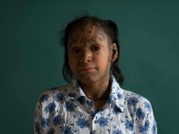 Help this 13-year-old girl fight a life of skin infections