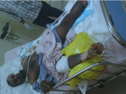 Help Venkatasubbaiah Who Got Electrocuted In Fire Accident.