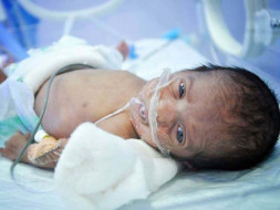 Infant Fights For Life After Pregnant Woman Was Refused Treatment