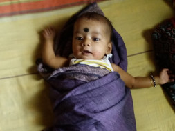 Help My Baby Aashrita Who Is Fighting To Survive
