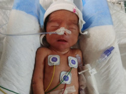Help Baby Of Priya, Who was Born Premature And Is InNICU.
