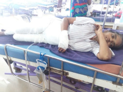 """Help Swarna fire accident"" - She needs funds for medical expenses"