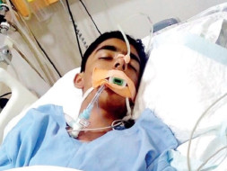 15 year old school boy in Coma with brain damage due to Electrocution