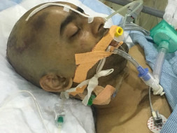 Please Help Our Friend Prashant Who Is Pushing His Limits To Survive