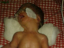 Help Ashok premature baby survive