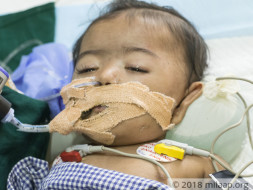 This 7-month-old cannot exhale on her own and needs urgent treatment