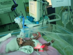 Help Me To Save My Premature Female Baby