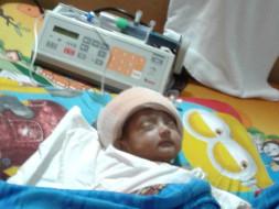 Help Baby Riddhi Fight Brain Operation
