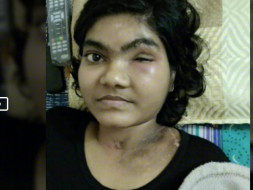 Help Pooja Undergo Her Second Surgery At The Earliest