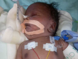 Help Baby of Riddhi Survive.
