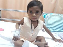 Liver Transplantation For My 2yrs Old Baby Boy