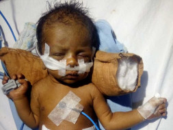 This 18-day-old baby cannot breathe and needs your help to live