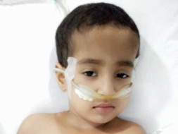 Baby Surabhi 3 Years Old Suffering From Pneumonia And Emhyma