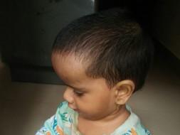 Help Ganesh Treat His Son's Hydrocephalus