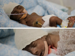 Help Kanchana save her premature twins and take them home