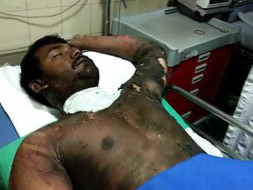 Help Satish Kumar Who Suffered 80℅ 3rd° Burns And Is Fighting For Life