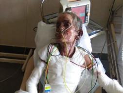 Mr & Mrs Mayekar Who Got Severly Burn Due To Gas Cylinder Leakage .