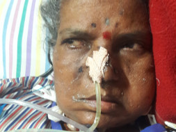 Help Yashwanti Rathod For Multiple Septic In Brain And Other Organs