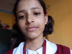 Help Rayati To Stand  On Her Own Spine To Fight Against Spinal Disease