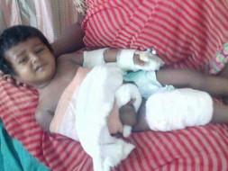Help Little Madhulika Get A Hand