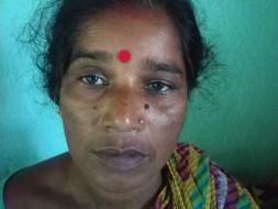 Help Shakuntala Fighting Colon Cancer