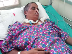 Help my wife Shyamala recover from cerebral hemorrhage