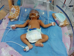 Premature Baby Needs Surgery In 24 Hours To Survive Kidney Damage
