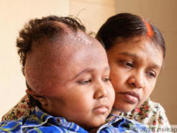 A  Deadly Tumor Has Disfigured This Young Boy's Face, Needs Help