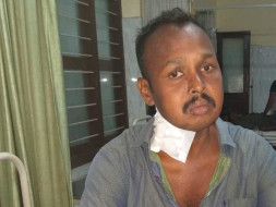 Help My Brother Undergo A Kidney Transplant
