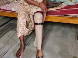 Help My Aunt Get A Flexible Prosthetic Leg